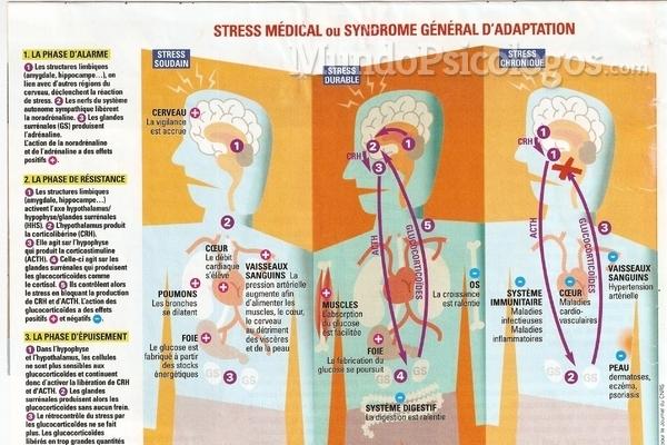 O que é o stress